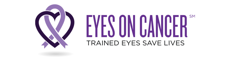 Eyes On Cancer, a SkyMD program